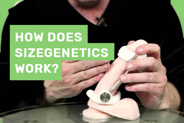 How does SizeGenetics Work?