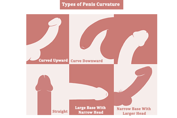 Types Of Penis Curvature