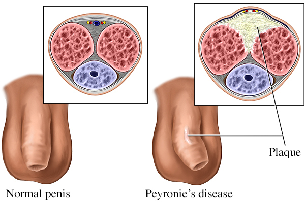 What is Peyronie's Disease