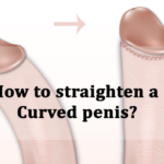 how to straighten a curved penis?